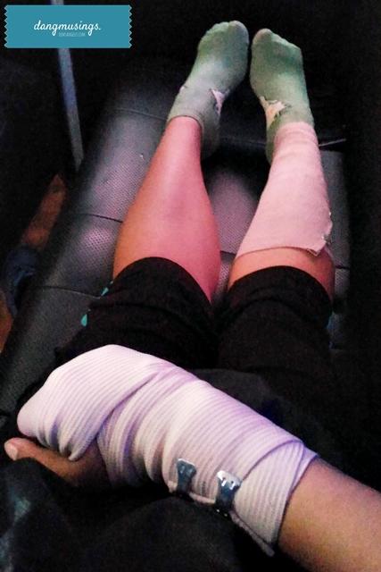 injured on my birthday :'(